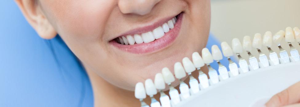 Get The Best In Mississauga Teeth Whitening Dentistry On Glen Erin